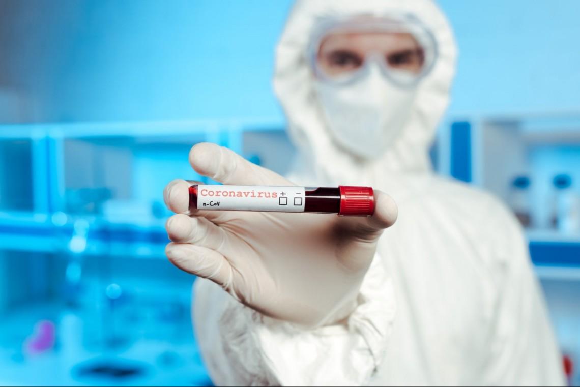 За сутки коронавирусом заразились 32 астраханца